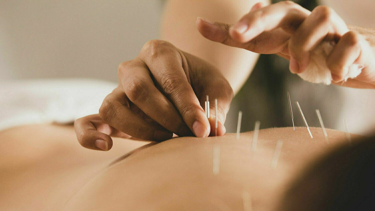 Acupoint Chinese Medicine   Bentleigh Clinic