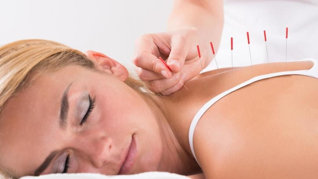 Maggie Shao Acupuncture