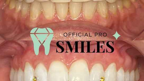 Official Pro Smiles  3